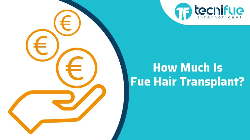How Much Is FUE Hair Transplant?, How Much Is FUE Hair Transplant?