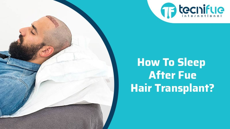 How To Sleep After FUE Hair Transplant?, How To Sleep After FUE Hair Transplant?