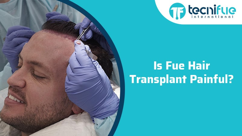 Is FUE Hair Transplant Painful?, Is FUE Hair Transplant Painful?