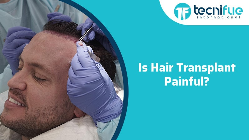 Is A Hair Transplant Painful?, Is A Hair Transplant Painful?