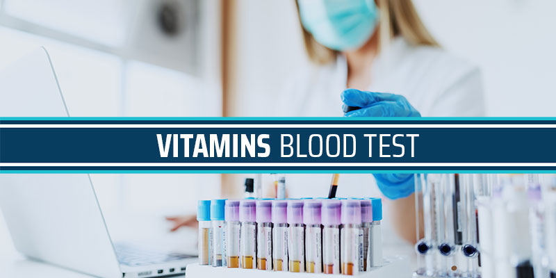 Vitamins Blood Test