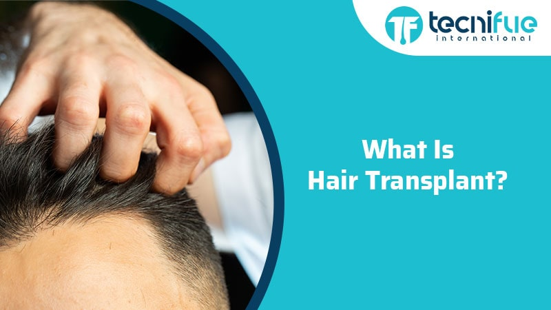 What Is Hair Transplant?, What Is Hair Transplant?