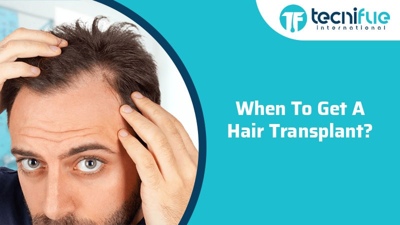 When Is To Get A Hair Transplant?
