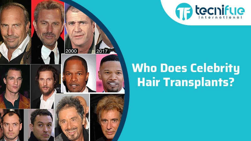 Who Does Celebrity Hair Transplants?, Who Does Celebrity Hair Transplants?