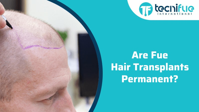 Are FUE Hair Transplants Permanent, Are FUE Hair Transplants Permanent