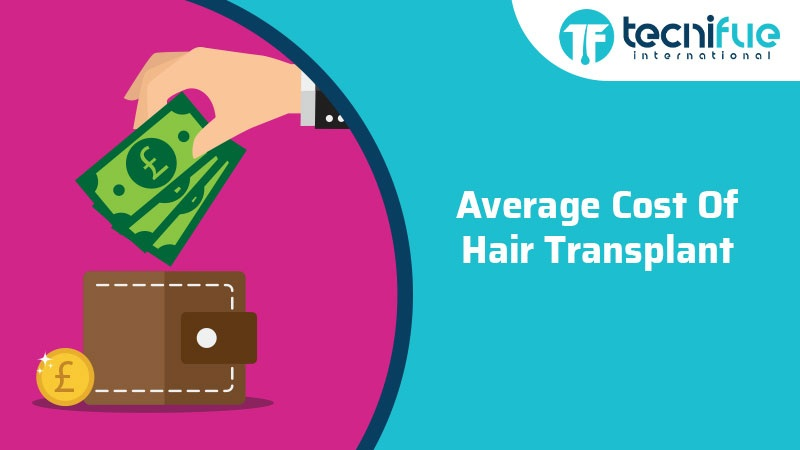 Average Cost Of Hair Transplant, Average Cost Of Hair Transplant