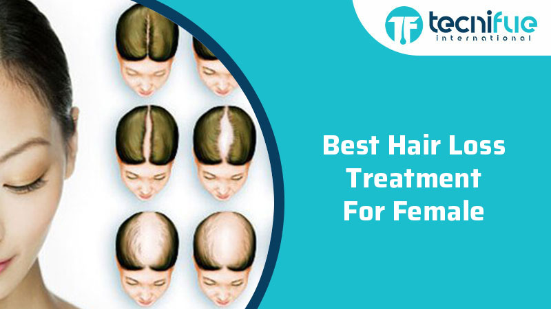 Best Hair Loss Treatment For Females, Best Hair Loss Treatment For Females