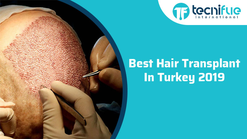 Best Hair Transplant In Turkey 2019