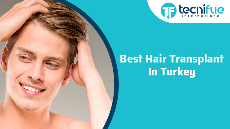 Best Hair Transplant In Turkey, Best Hair Transplant In Turkey