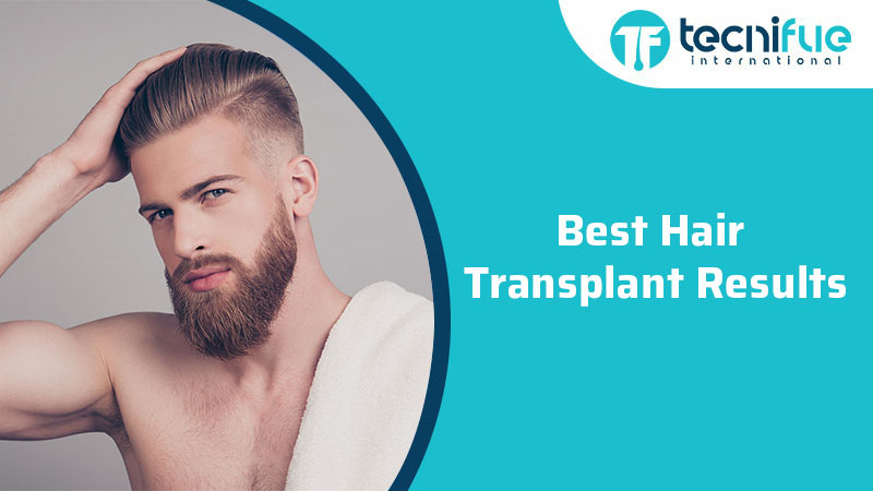 Best Hair Transplant Results, Best Hair Transplant Results