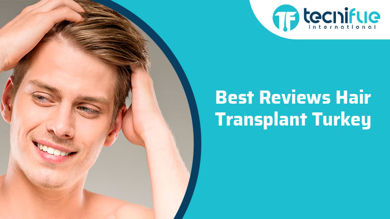 Best Reviews Hair Transplant Turkey