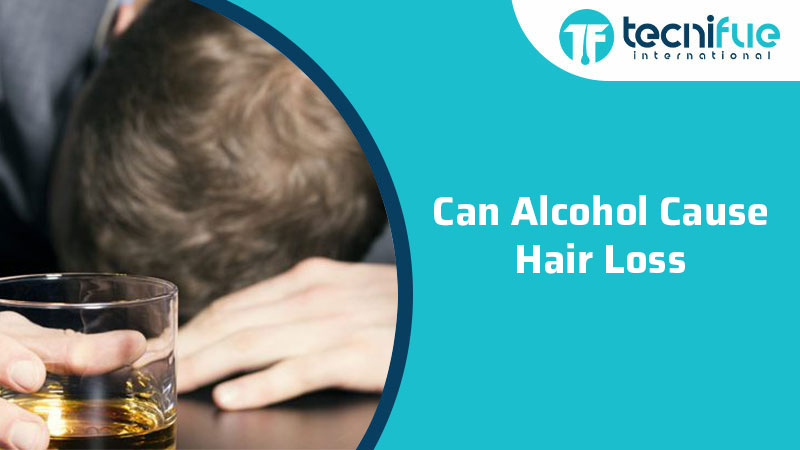 Can Alcohol Cause Hair Loss?