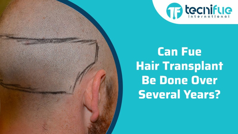 Can Fue Hair Transplant Be Done Over Several Years