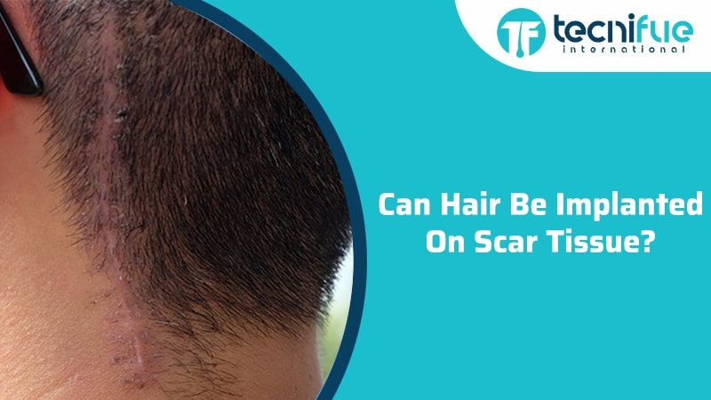 Can Hair Be Implanted On Scar Tissue?