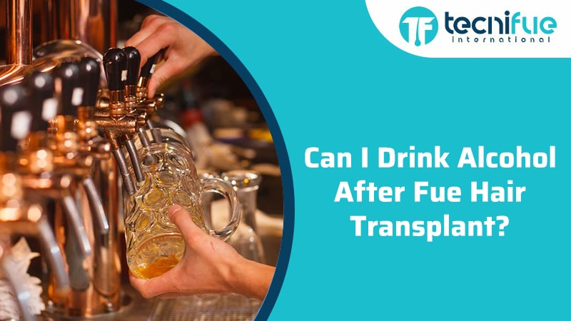 Can I Drink Alcohol After FUE Hair Transplant?, Can I Drink Alcohol After FUE Hair Transplant?