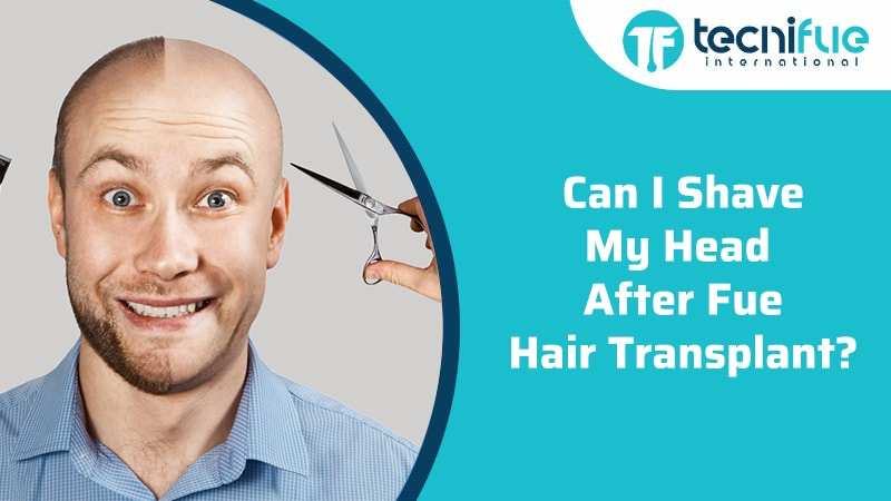 Can I Shave My Head After FUE Hair Transplant?, Can I Shave My Head After FUE Hair Transplant?