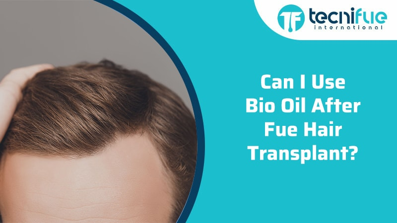 Can I Use Bio-Oil After FUE Hair Transplant, Can I Use Bio-Oil After FUE Hair Transplant