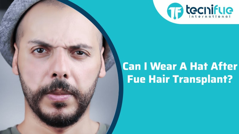 Can I Wear A Hat After Fue Hair Transplant?, Can I Wear A Hat After Fue Hair Transplant?