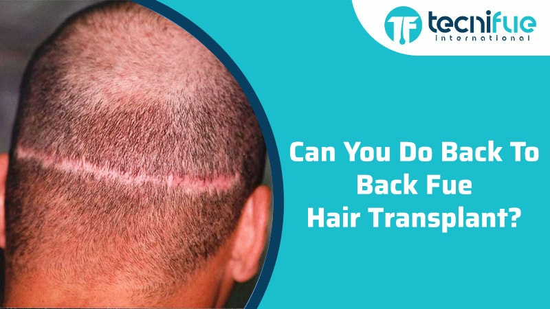 Can You Do Back To Back FUE Hair Transplant?