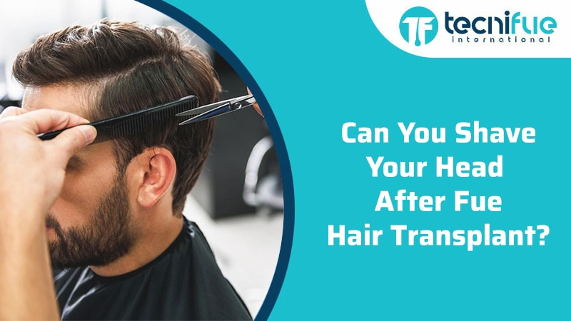 Can You Shave Your Head After FUE Hair Transplant?