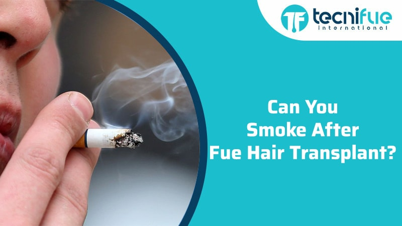 Can You Smoke After Fue Hair Transplant?