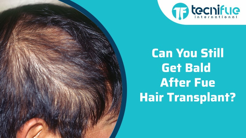 Can You Still Get Bald After An FUE Hair Transplant?