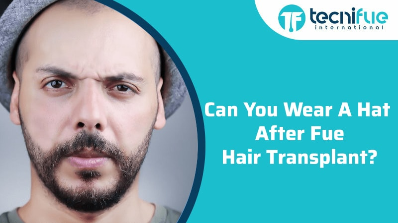 Can You Wear a Hat After FUE Hair Transplant?, Can You Wear a Hat After FUE Hair Transplant?