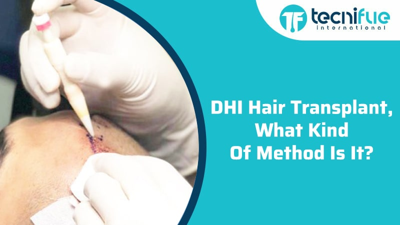 DHI Hair Transplant, What Kind Of Method Is It?