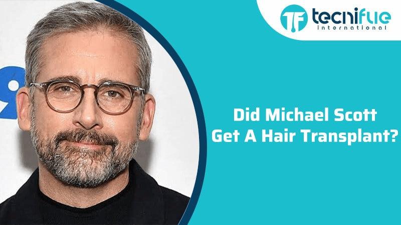 Did Michael Scott Get A Hair Transplant?, Did Michael Scott Get A Hair Transplant?