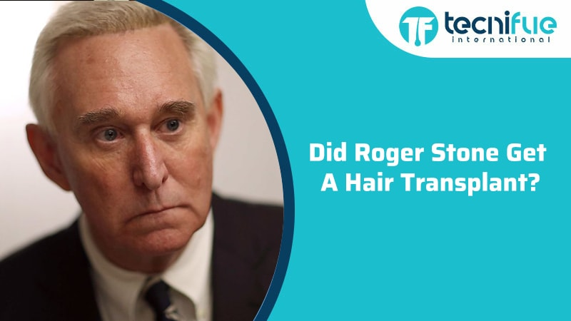 Did Roger Stone Get a Hair Transplant?, Did Roger Stone Get a Hair Transplant?