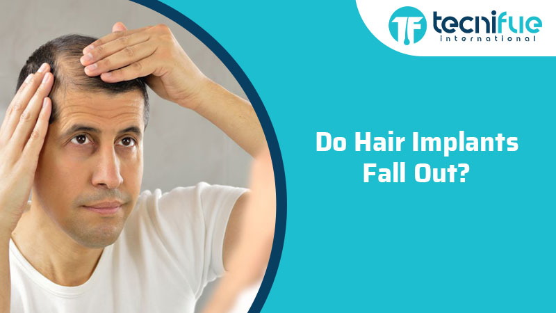 Do Hair Implants Fall Out?