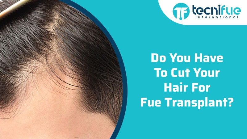 Do You Have To Cut Your Hair For FUE Transplant?, Do You Have To Cut Your Hair For FUE Transplant?