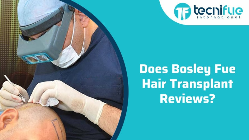 Bosley FUE Hair Transplant Reviews, Bosley FUE Hair Transplant Reviews