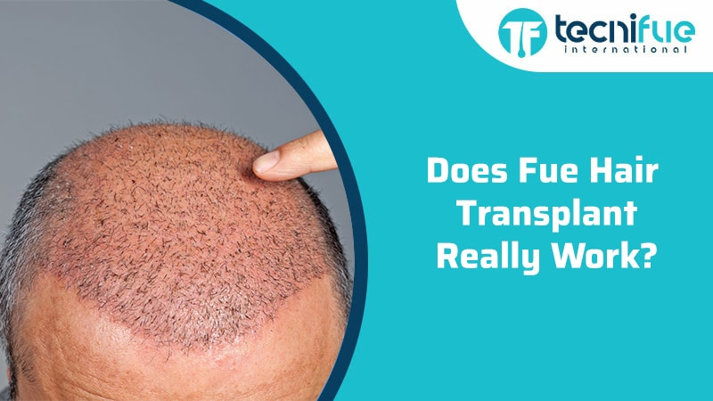 Does Fue Hair Transplant Really Work?, Does Fue Hair Transplant Really Work?