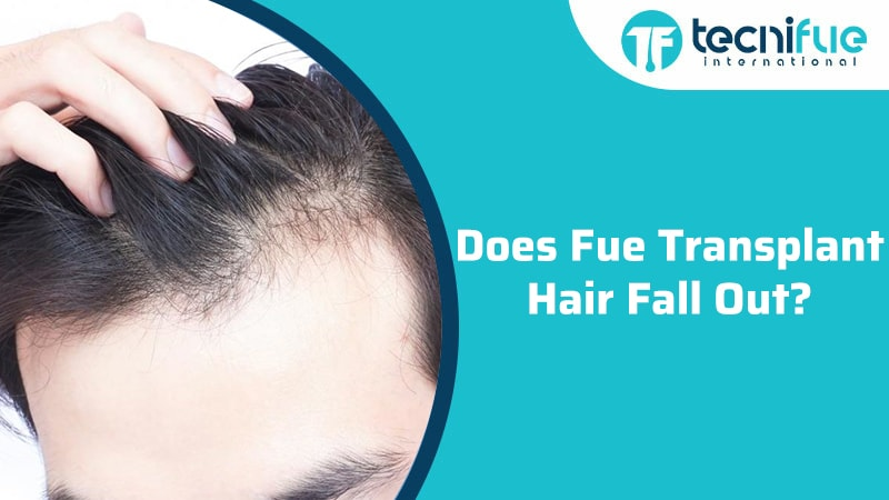 Does FUE Transplant Hair Fall Out?, Does FUE Transplant Hair Fall Out?