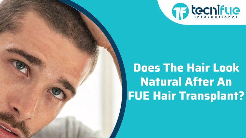 Does The Hair Look Natural After An FUE Hair Transplant?