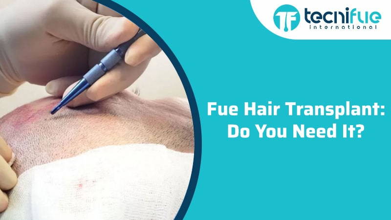 Fue Hair Transplant: Do You Need It?, Fue Hair Transplant: Do You Need It?
