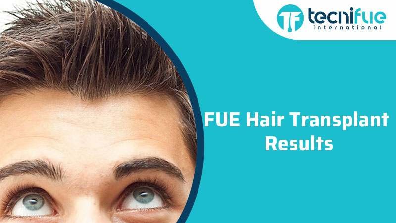 FUE Hair Transplant Results, FUE Hair Transplant Results
