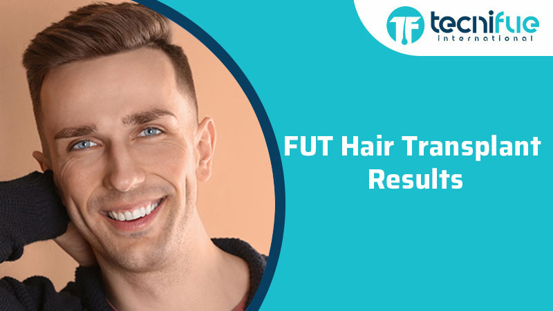 FUT Hair Transplant Results, FUT Hair Transplant Results