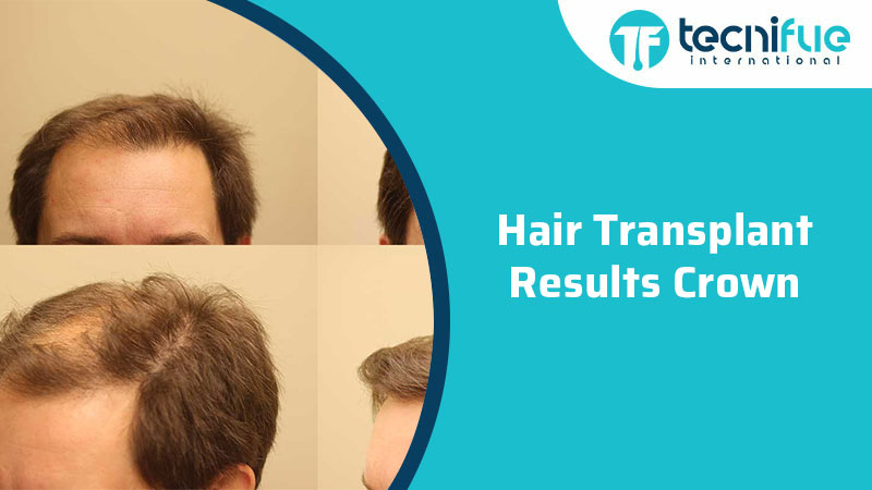 Hair Transplant Results Crown