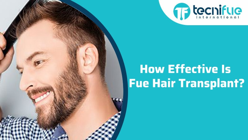 How Effective Is Fue Hair Transplant?