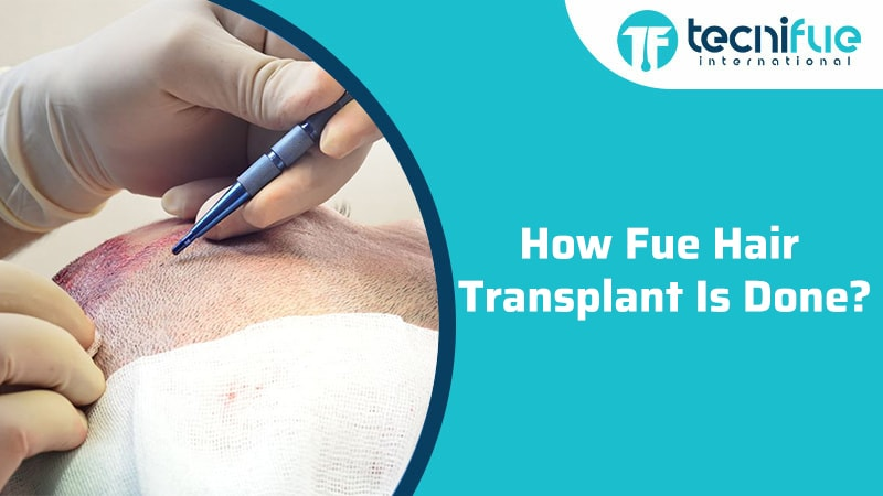 How Fue Hair Transplant Is Done?, How Fue Hair Transplant Is Done?