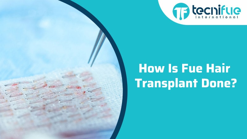 How Is Fue Hair Transplant Done?