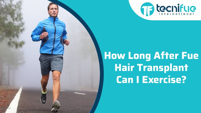How Long After Fue Hair Transplant Can I Exercise?, How Long After Fue Hair Transplant Can I Exercise?