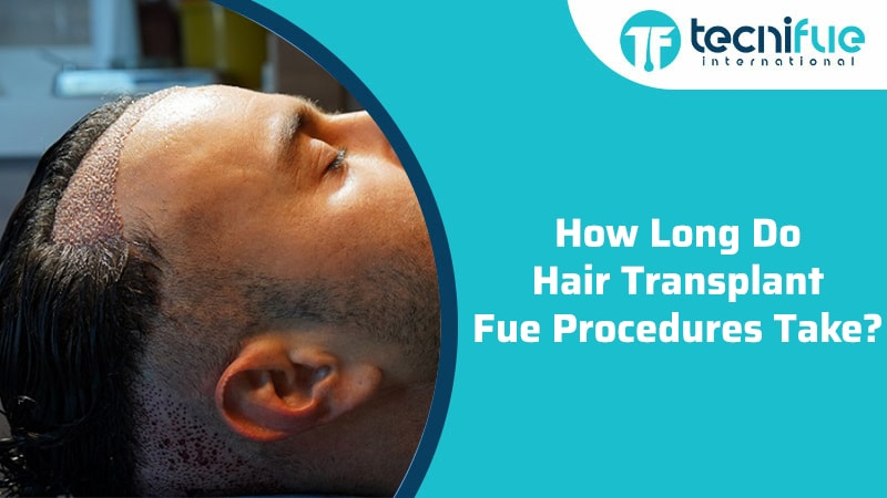 How Long Do Hair Transplant Fue Procedures Take?