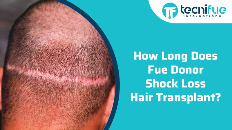 How Long Does Fue Donor Shock Loss Hair Transplant?