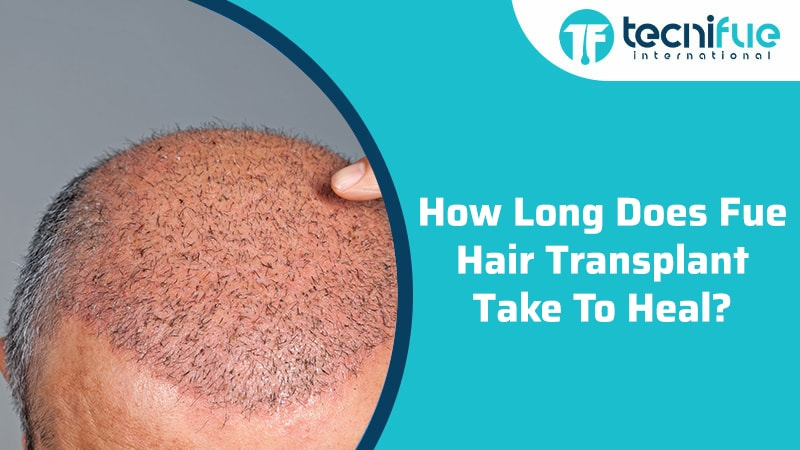 How Long Does Fue Hair Transplant Take To Heal?