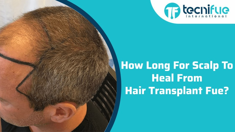 How Long For Scalp To Heal From Hair Transplant FUE?, How Long For Scalp To Heal From Hair Transplant FUE?