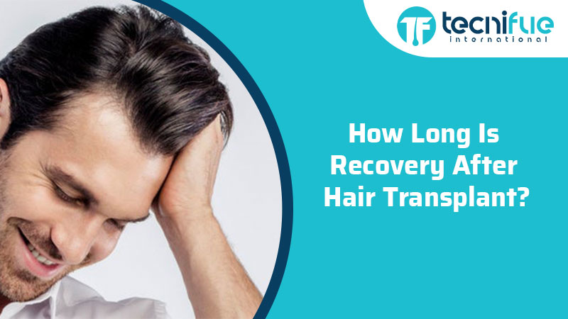 How Long Is Recovery After Hair Transplant?, How Long Is Recovery After Hair Transplant?