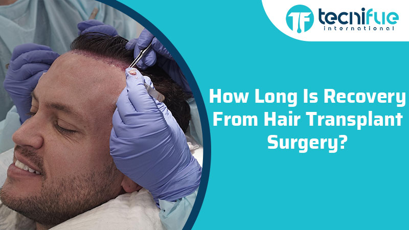 How Long Is Recovery From Hair Transplant Surgery?